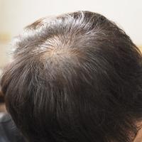 薄毛の原因と対策とは?自分ではできない薄毛予防対策は理容室がおすすめ